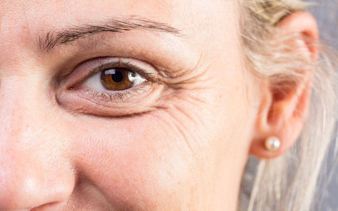 Wrinkles! Lovely Wrinkles!